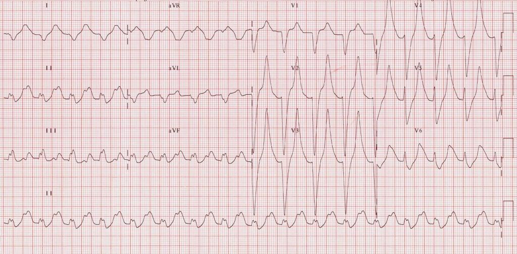 ECG-Potassium-9.2