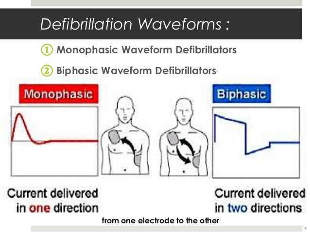 difibrilatör dalga
