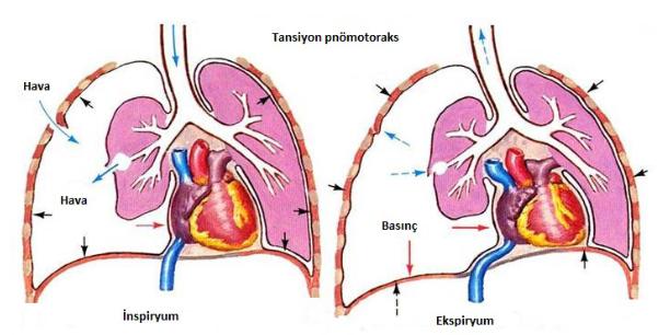 Emici göğüs yaralanması nedeniyle ortaya çıkan tansiyon pnomotoraks
