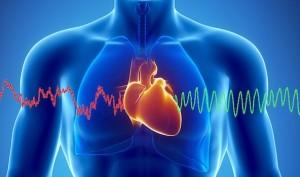 Transkutanöz Pacemaker Uygulaması