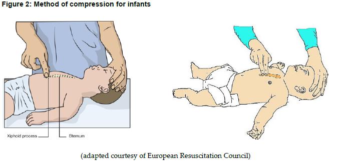 Bebeklerde göğüs kompresyonu yeri