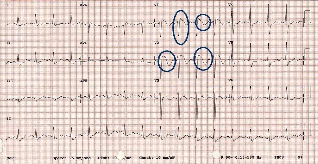 Tip 1 Brugada EKG Örneği-3