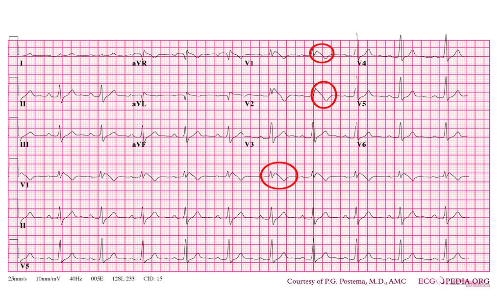 Tip 1 Brugada EKG Örneği - 2