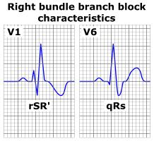 Sağ dal bloğunda rSR' ve uzamış S dalgası