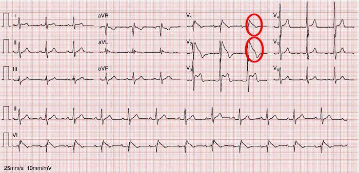 Tip 1 Brugada EKG Örneği