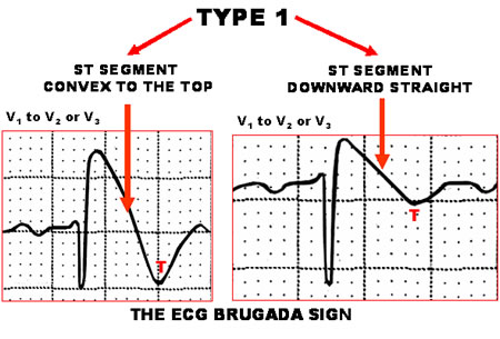 Brugada Tip ! ST segment elevasyonu