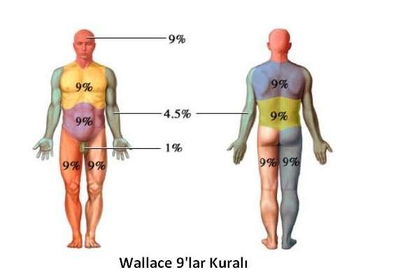Wallace 9 lar Kuralı