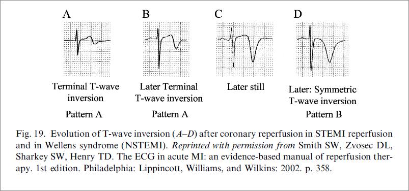 Wellens Sendromu Sınıflandırma