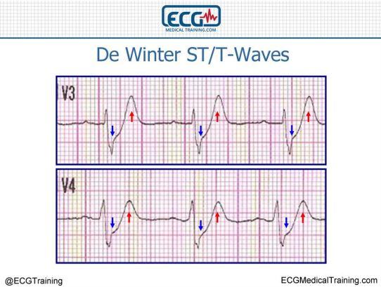 D Winter's T Dalgaları