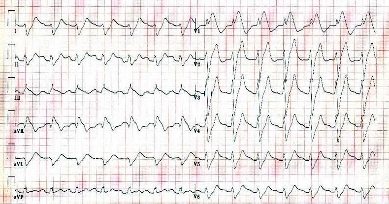 Trisiklik antidepresan zehirlenmesinde Uzamış QT mesafesi ve geniş QRS